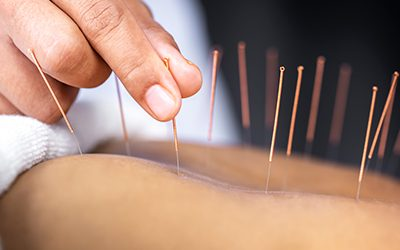 Gaon Wellness Acupuncture