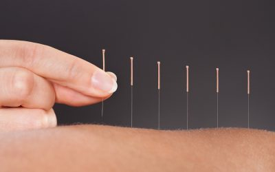 b2ap3_large_considering-acupuncture